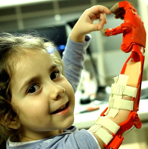 Robo hand through communal 3D printing